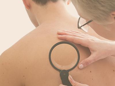 Remoção de Sinais e Tumores de Pele
